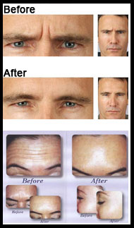 Botox Treatments Pretoria